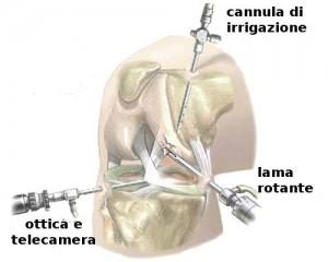 artroscopia del ginocchio 1