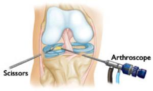 artroscopia del ginocchio 2