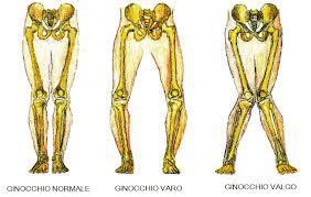 artrosi-ginocchio3