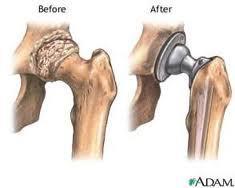protesi dell'anca 2