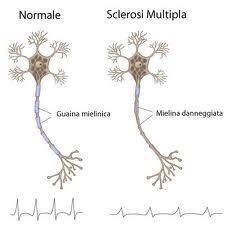 Effetti della sclerosi multipla sui neuroni