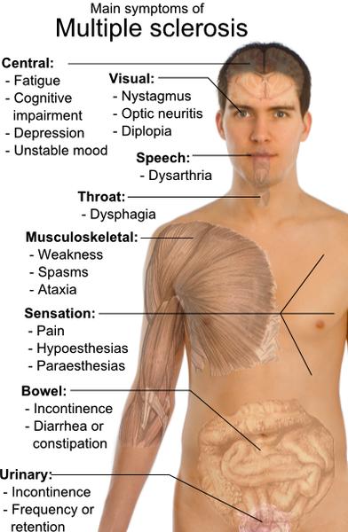 Sintomi della sclerosi multipla