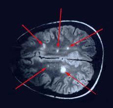 Diagnosi della sclerosi multipla
