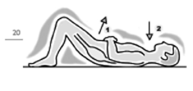 stenosi-canale-vertebrale4