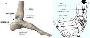 distorsione caviglia