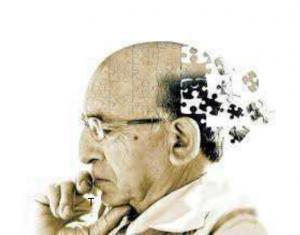malattia di alzheimer
