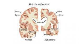 malattia di alzheimer2