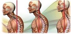rieducazione posturale-cos'è