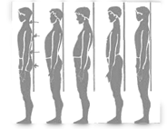rieducazione posturale- quando farla