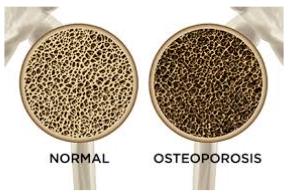 osteoporosi e tessuto osseo